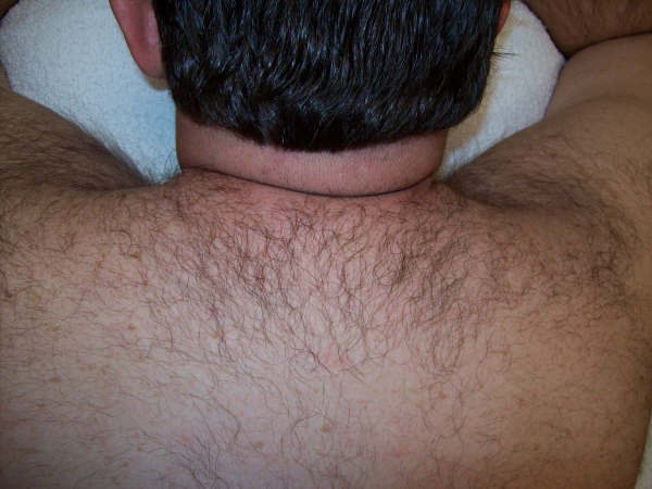laser-hair-removal-before picture