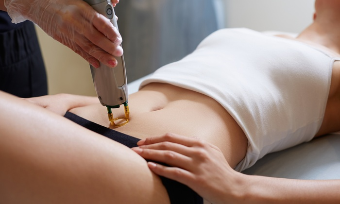 Best Gainesville Laser Hair Removal Special